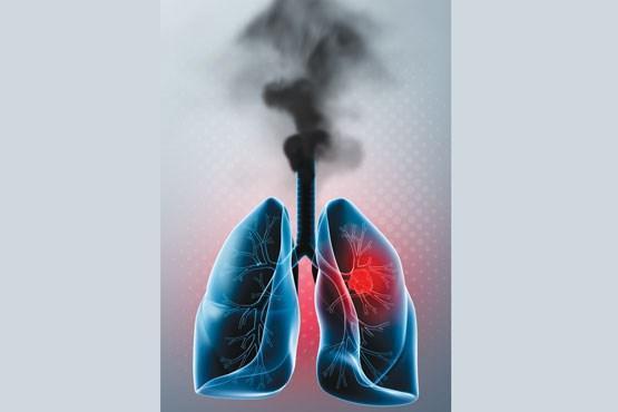 با این معجون جادویی ریه هایتان را از دود سیگار و قلیان پاک کنید