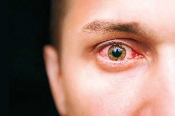 راز چشمان خونین (اینفوگرافیک)