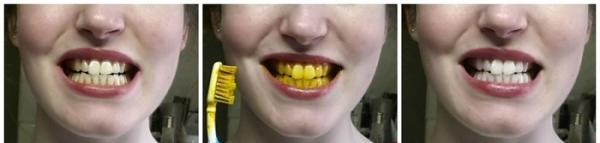 فواید و روش های سفید کردن دندان با زردچوبه
